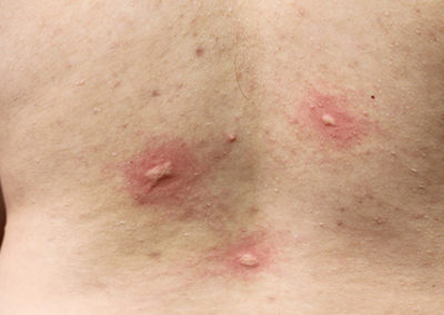 Bites from bed bugs