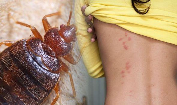 Troy Bed Bug Infestation